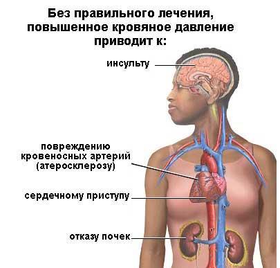 Гипертония: первый визит к врачу