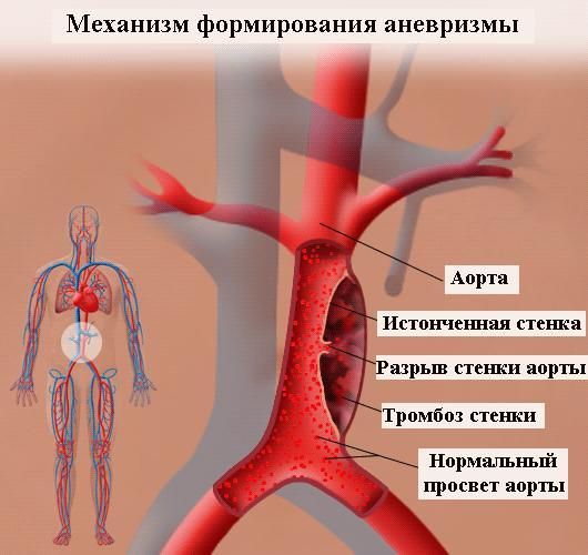 Аневризма аорты – осложнение гипертонического криза